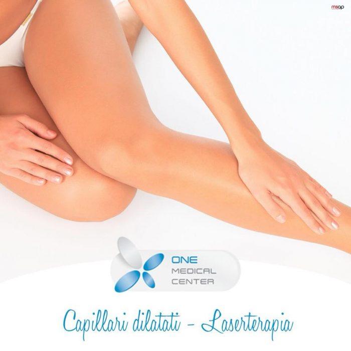 capillari dilatati - laserterapia